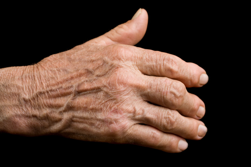 Stem Cell Treatment for Arthritis Sufferers